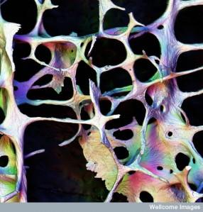 ca980-osteoporosis