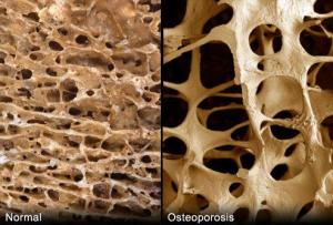 Dr. Robert O. Young's Research on the Cause and Cure for Osteoporosis Has Been Validated by Published Research!
