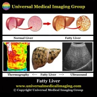 A Fatty Liver is Caused by an Acidic Lifestyle and Diet!