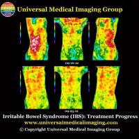 Irritable Bowel Syndrome (IBS) Caused by Increased Acidity From Increased Acidic Food and Supplements