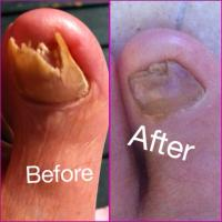 A Self-Care to a Self-Cure for Toenail Fungus