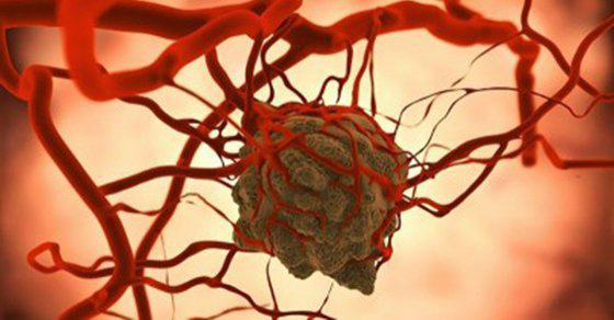 deteccion-cancer-azucares