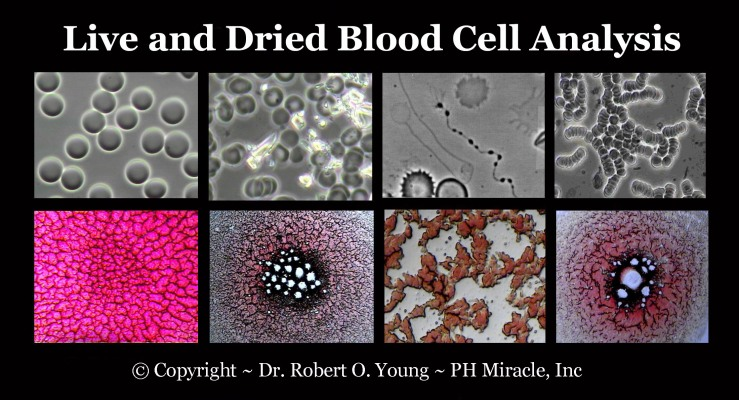 Live and Dried Blod Analysis - Copyright ROY