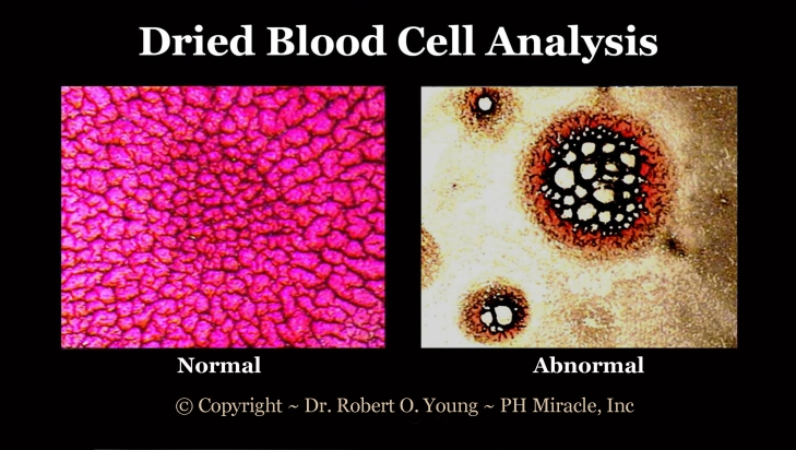 Live and Dried Blod Analysis - Copyright - ROY