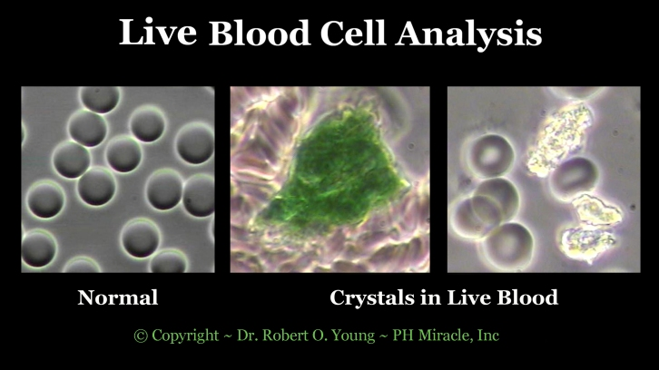 Live Blod Analysis - Crystals .Copyright ROY