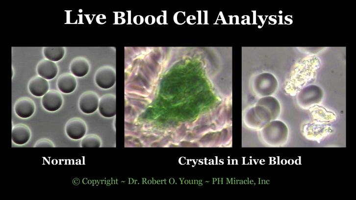Live Blod Analysis - Crystals .Copyright ROY